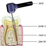PD_Root_Canal